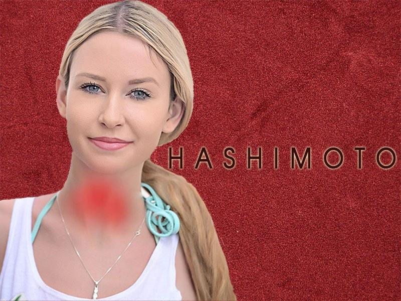 Żywienie w chorobie Hashimoto
