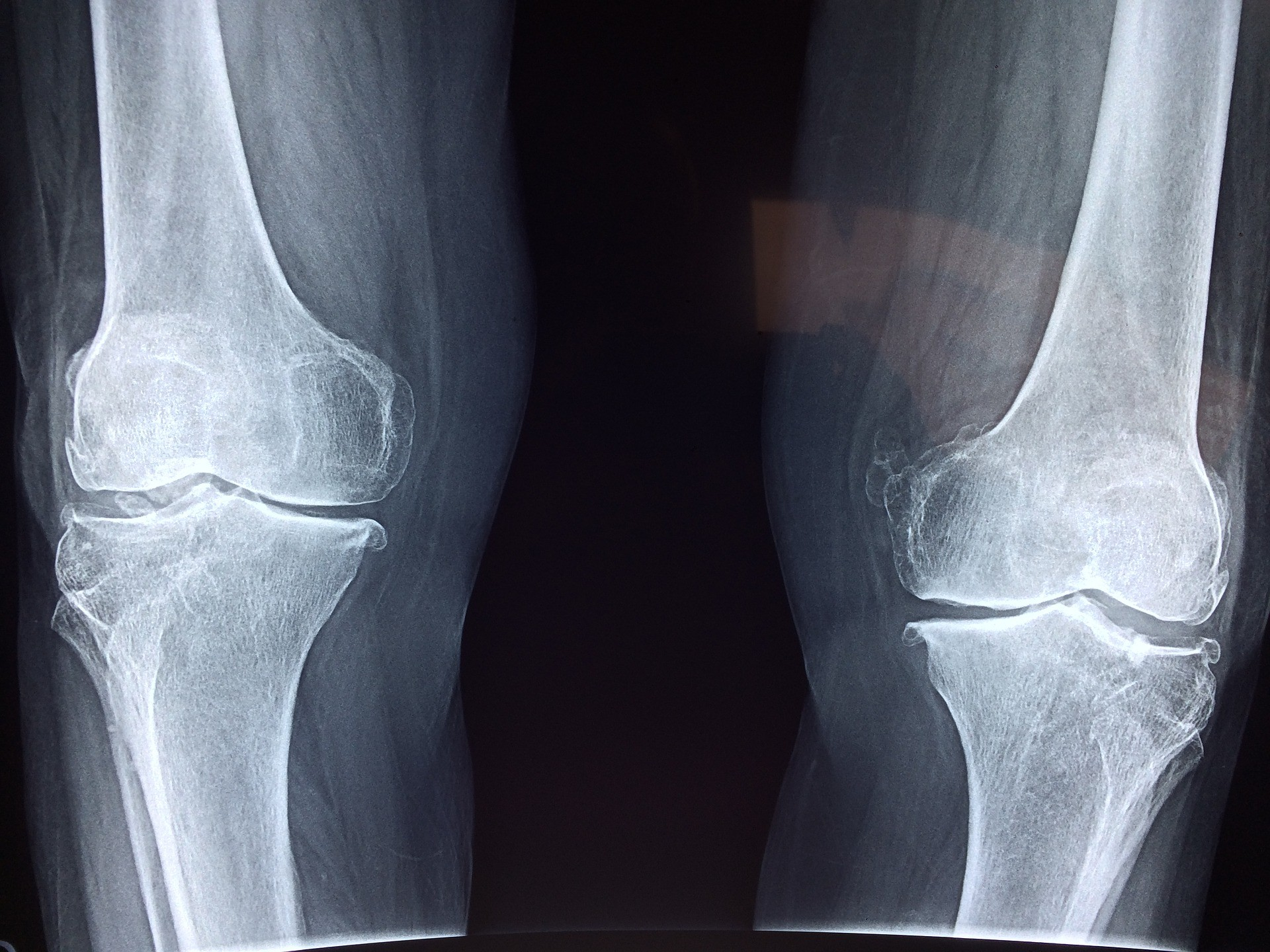 Składniki odżywcze ważne dla twojego układu kostnego