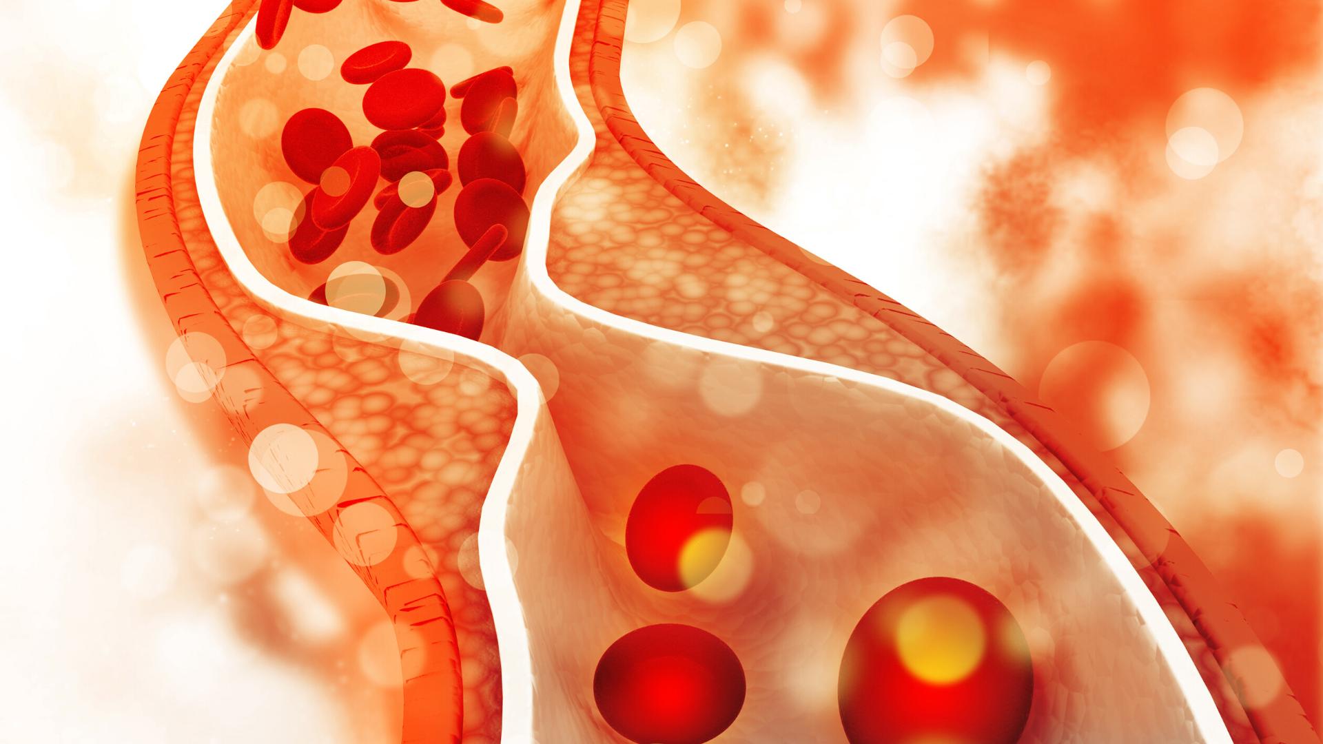 Cholesterol- czy masz się czego obawiać